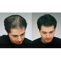 Dexe Nano Hair Nano Fibra Para Calvicie/pelo Polvo